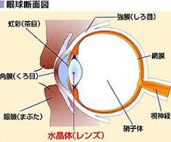網膜が一部破けるのが網膜裂孔です