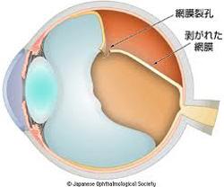 網膜裂孔を放置すると、網膜剥離になります