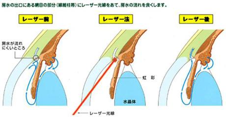 緑内障のレーザー治療:SLT:選択的レーザー線維柱帯形成術