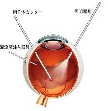 硝子体手術の方法